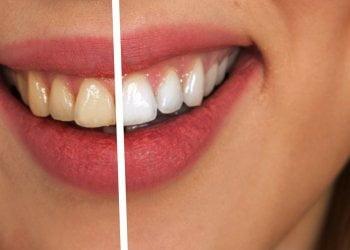 LED bělení zubů